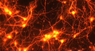Клетки мозга под микроскопом. Фото NIH Image Gallery (CC BY-NC 2.0)